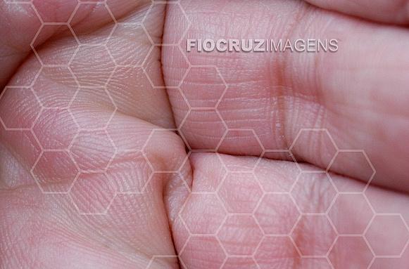 Textura de pele